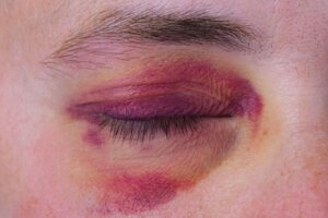 Broken eye socket MN lawyer